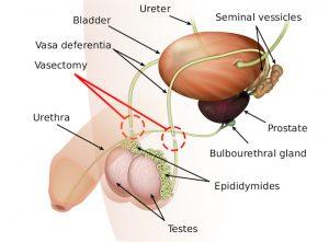 Vasectomy. Image: Wikipedia